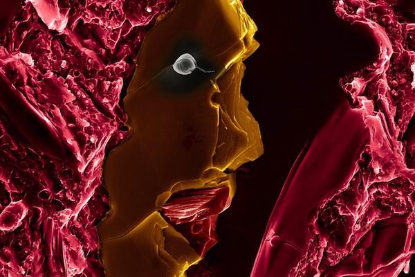 Babak Anasori - Fractured surface of a nanocrystalline magnesium matrix composite